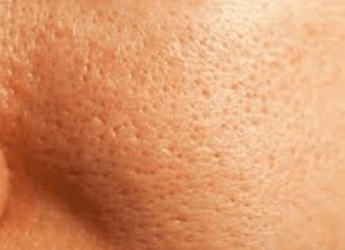 Naturally Lighten Skin Around Anus
