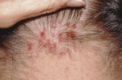 What causes tender spots on scalp