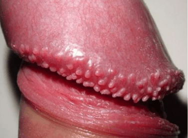 Red spots on penis head