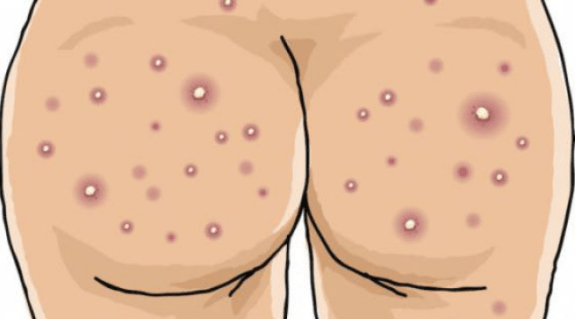Pimple On Buttocks Causes Std Pictures Huge Painful