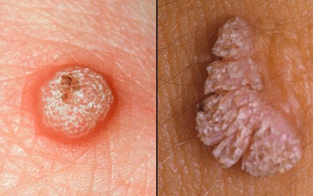 Skin Tags On Penis Pictures Causes Meaning Hpv Remove Get Rid
