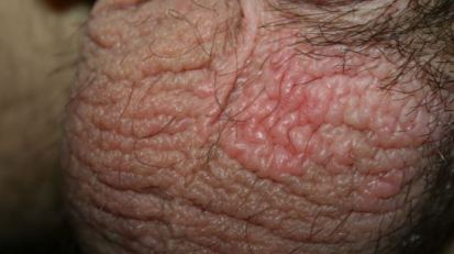 What Causes Itchy Testicles, At Night, No Rash, Red, Dry