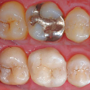 CEREC Restoration