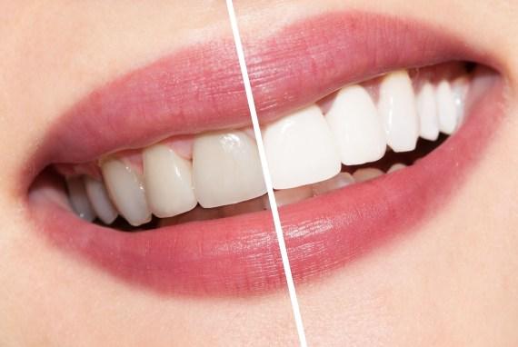teeth-whitening Different Methods of Bleaching