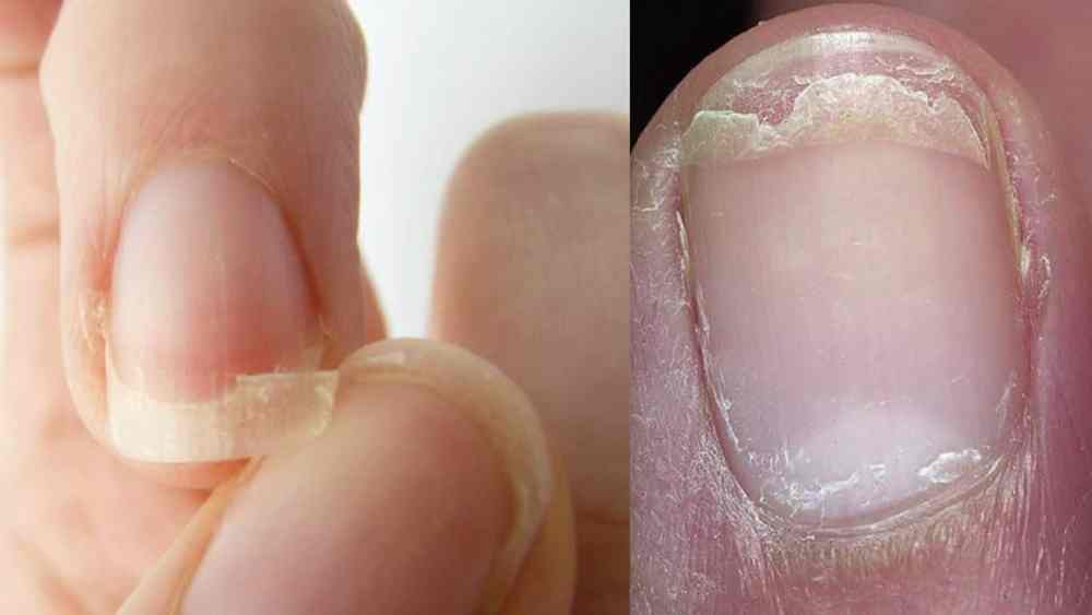 Image result for SAY BYE TO SPLIT-NAILS