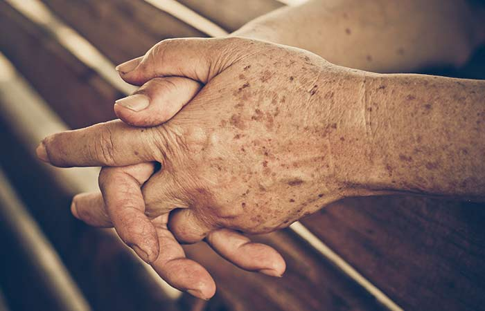 Best ways to make your hands look younger