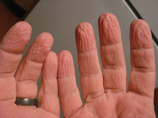 #5. Fingers wrinkle in water from a completely different reason