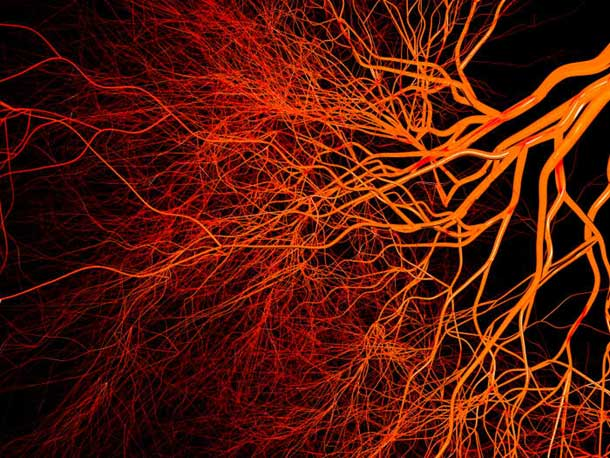 #12. Brain blood vessels are 100 000 miles long