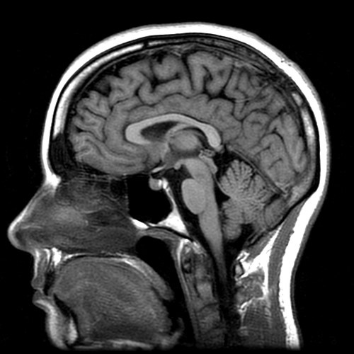 MRI view for the brain