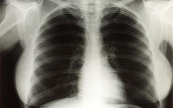 Marilyn Monroe's Chest X-rays Worth $45,000