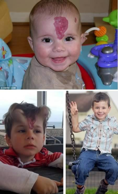 Young Boy Has Red Birthmark Removed from his Forehead