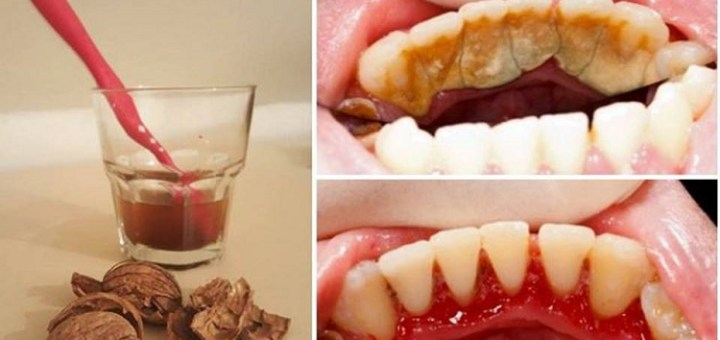 How To Get Rid Of Tartar With One Simple Ingredient