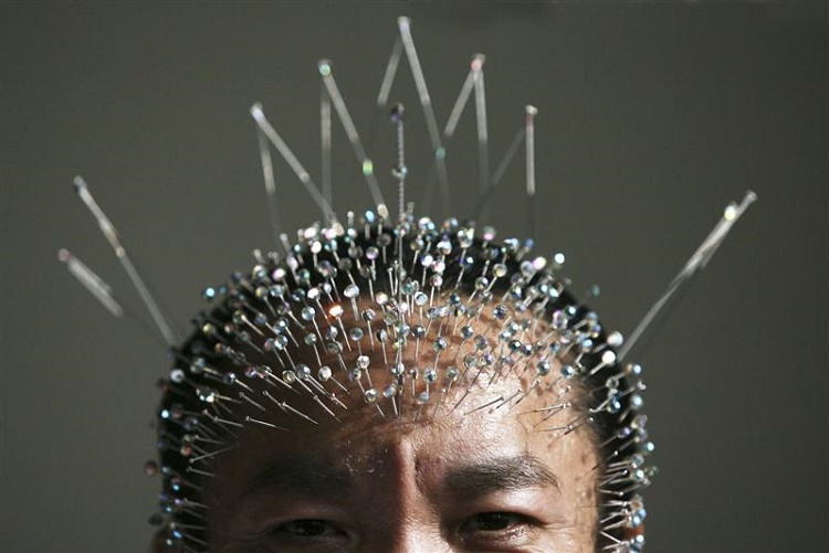 Acupuncture also enters the world of Sports