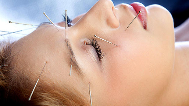 Extreme Health Need for Acupuncture