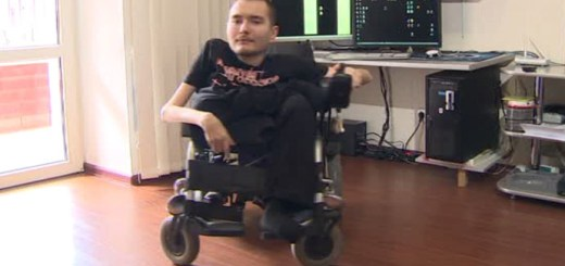 The world's first head transplant, a pure fantasy or a reality?