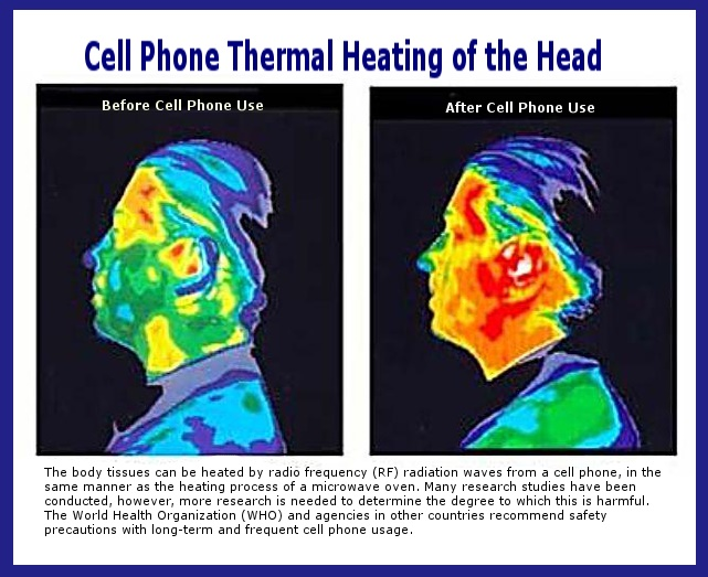 Cell phone radiation and its effect