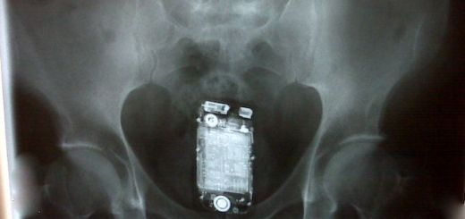 Doctor accidentally left mobile phone inside patient's stomach after c-section