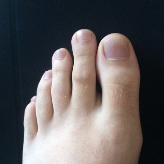 Your second toe is longer than the other toes