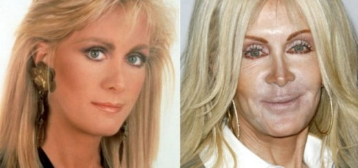 10 Hottest celebrities who aged awfully