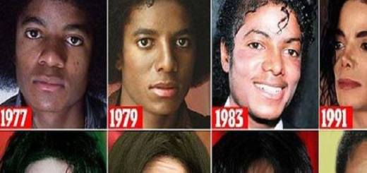 Story of Michael Jackson's skin – how he destroyed his face and skin via surgery