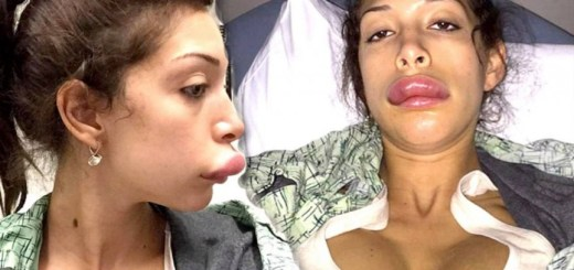 Worst celebrity lip augmentations that are no less than disasters