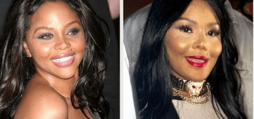 10 Celebrities who denied having cosmetic surgery