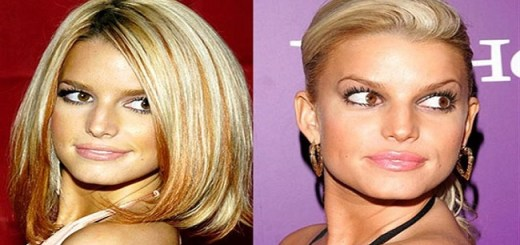 11 Celebs before and after they got surgically enhanced. See the difference!!