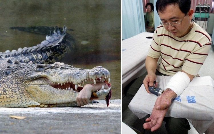 Reattachment of Forearm After Crocodile Attack