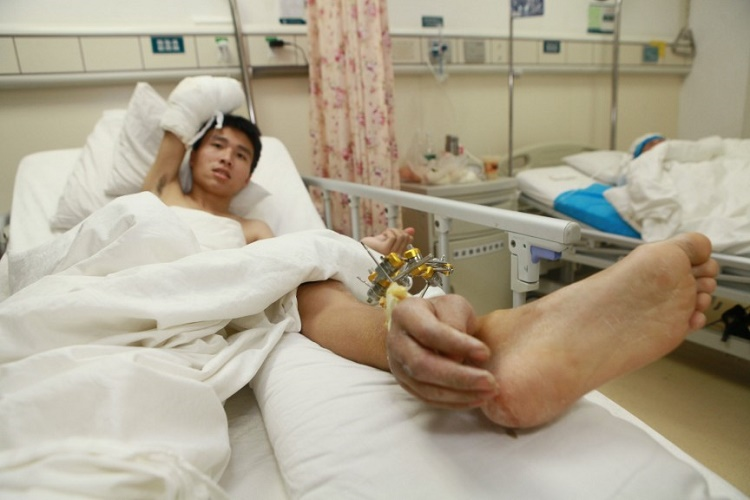 Severed Hand Grafted to Leg Before Reattachment
