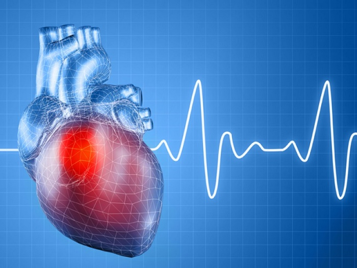 Cardiac arrest and its causes