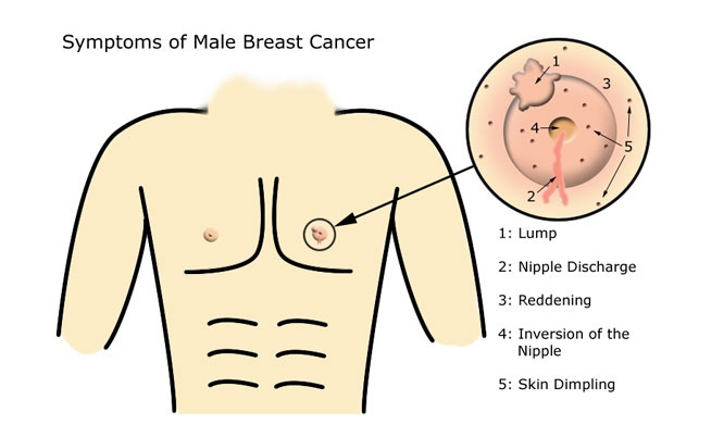 Even men can get breast cancer