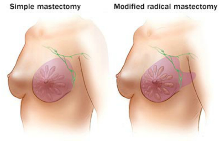 Mastectomy is not always the best treatment
