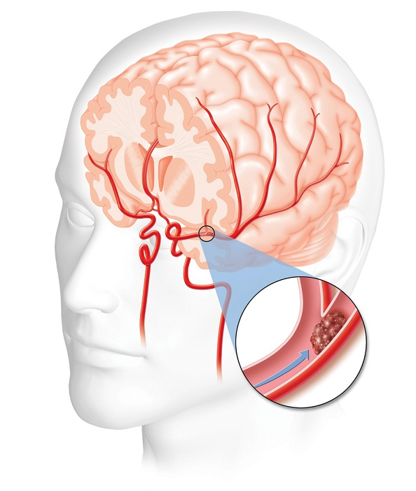 Stroke and its causes