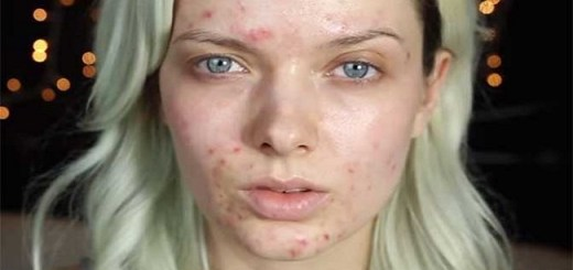 This woman uses makeup to get rid of her acne using a cool technique