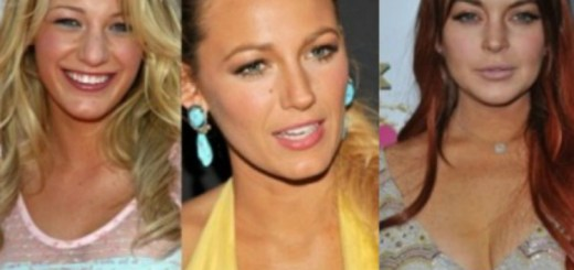 Here are some successful plastic surgeries of celebrities that transformed them for the better