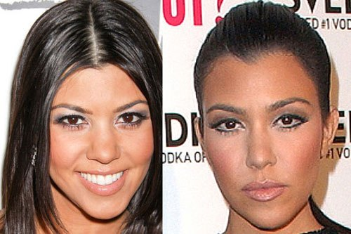 Kardashian Plastic Surgery Starts at Home