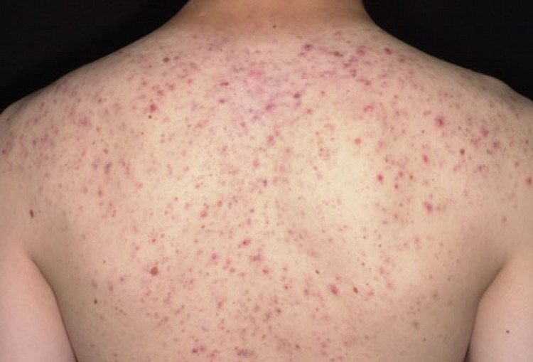 What are back acne?