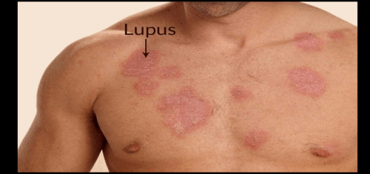 5 Strange facts about lupus you must know
