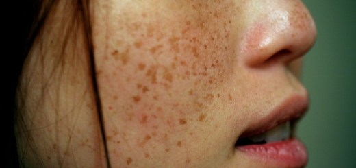 Everything you should know about skin pigmentation - causes, remedies and preventive measures