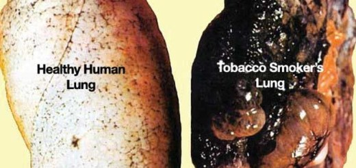 Have you noticed that people who never smoked a cigarette in their life are getting lung cancer lately?