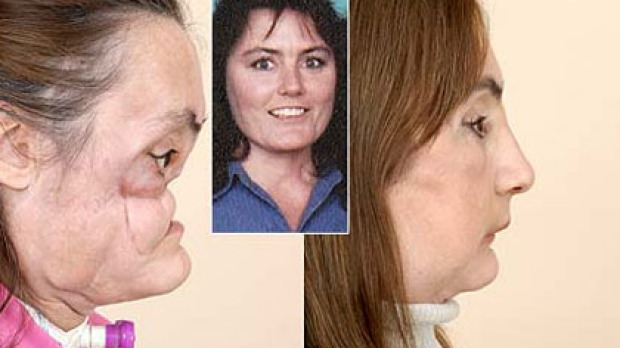It took 30 surgeries to restructure her face