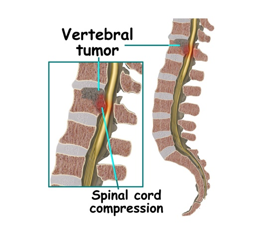 Symptoms of spinal cord tumors