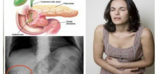 4 Natural ways to prevent gallstones