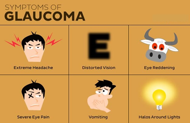 Symptoms of Glaucoma