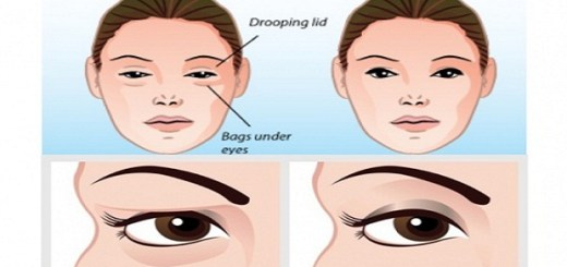 Troubled by sagging eyelids, here is a solution that takes just 2 minutes of your time