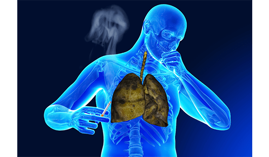 smoker's cough and how is it different from the cold cough?