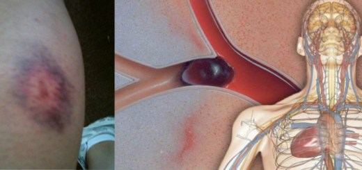 Blood clots can be a real killer - Don't ignore them!