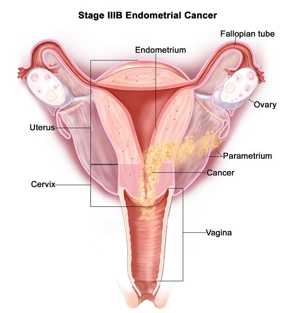 Endometrial Cancers