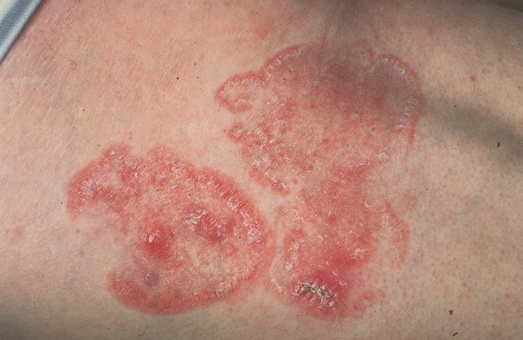 Mycosis Fungoid or Lymphoma the main causes of stubborn skin rash