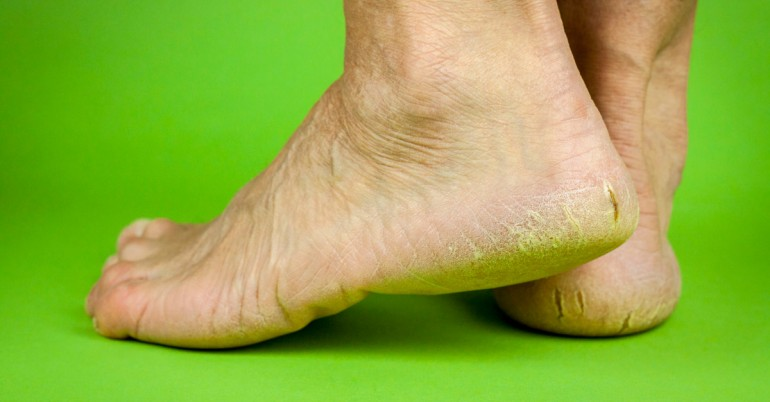 Reasons for cracked heels